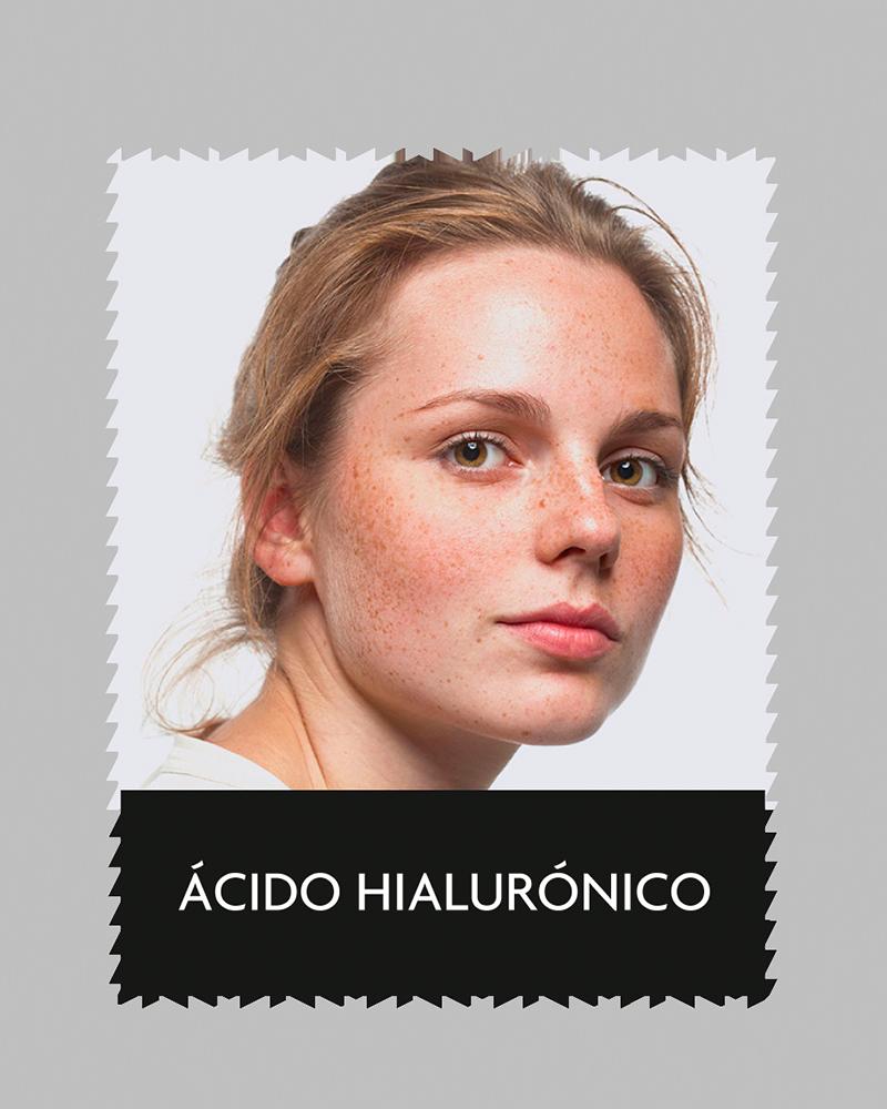 aluma_acidohialuronico
