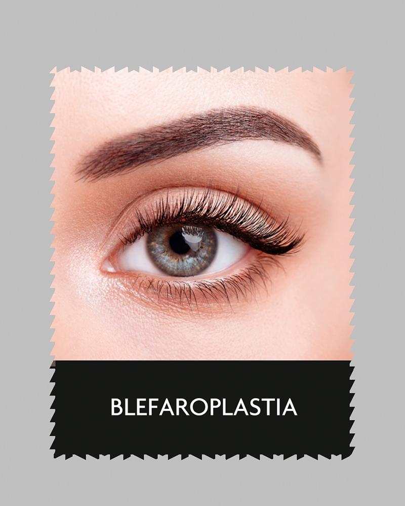 aluma_blefaroplastia