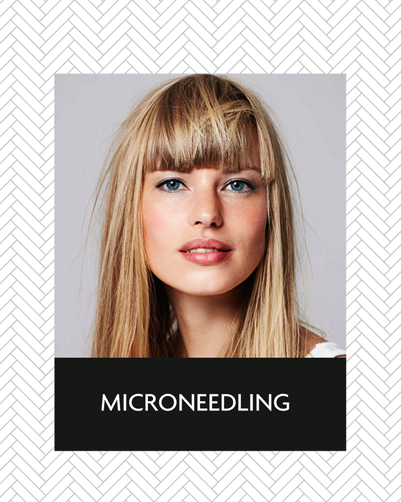 aluma_microneedling