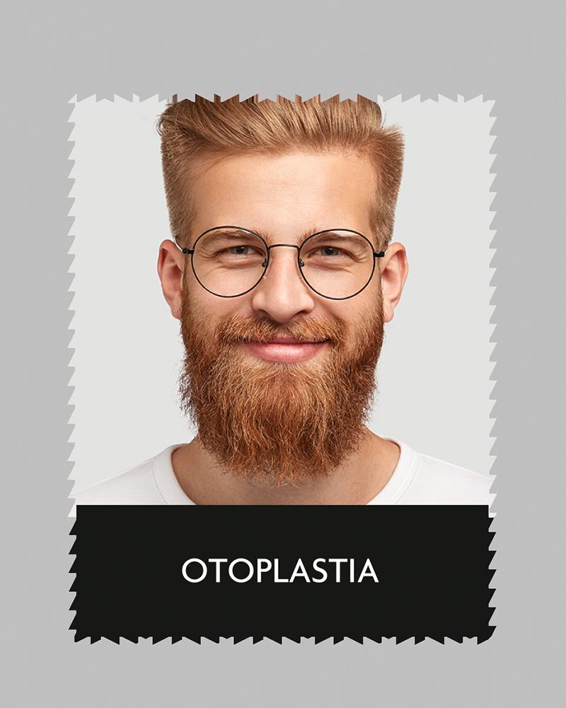 aluma_otoplastia