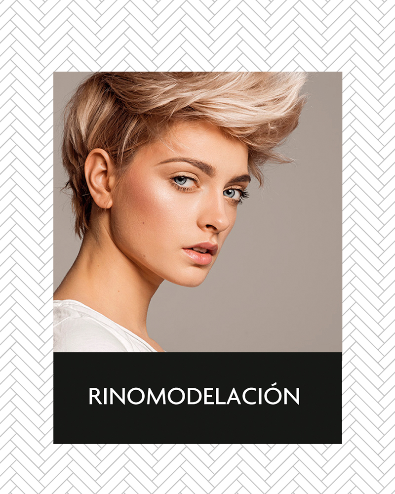 aluma_rinomodelacion