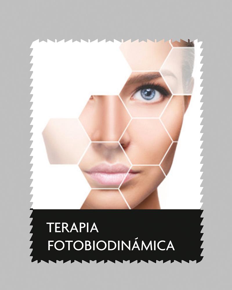 aluma_terapiafotobiodinamica
