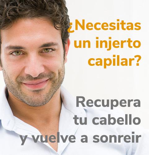 banner_injerto-capilar-movil